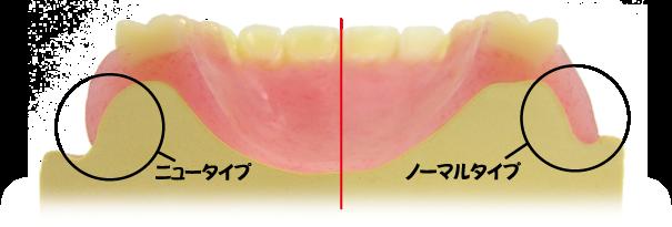ds-denture